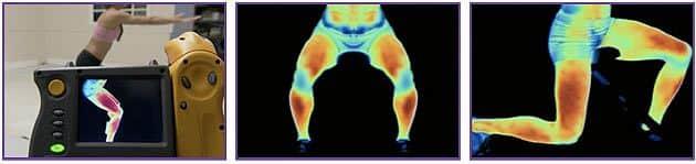 Posilovač nohou a boků inSPORTline Slim Legs